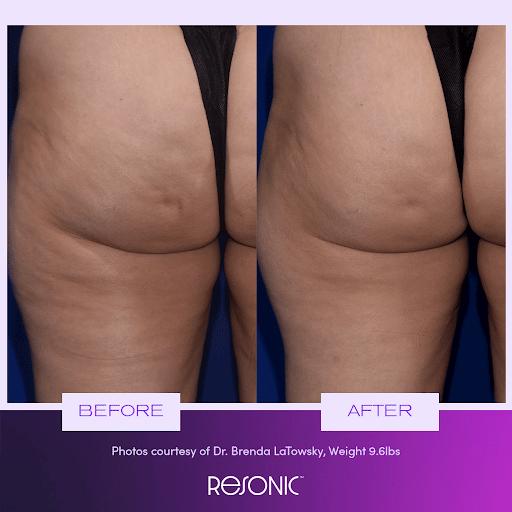 Resonic body contouring treatment results in NY, NY