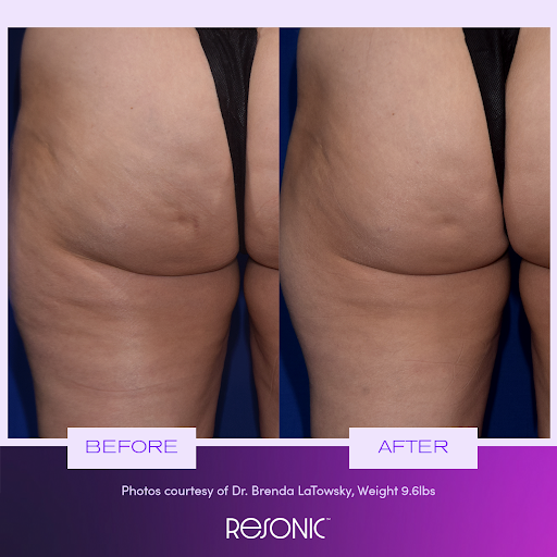 cellulite treatment results from Resonic device in NY, NY