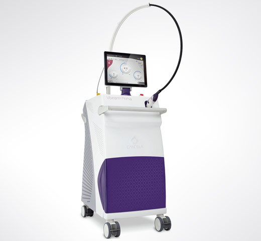 Vbeam Prima used for rosacea laser treatments in New York