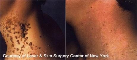 mole removal treatment results in NY, NY