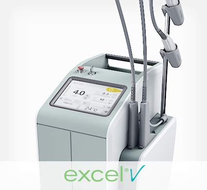 Excel V laser used for rosacea treatment in NY, NY