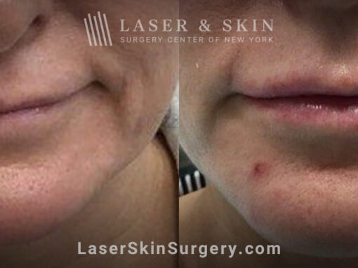 Lip filler to add fullness and improve the shape of the lips