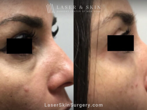 Filler Injections Under the Eye to Treat Discoloration