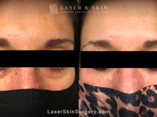 Filler Injections Under the Eye to Add Volume
