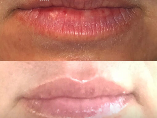 Filler Injections to Add Volume to Lips