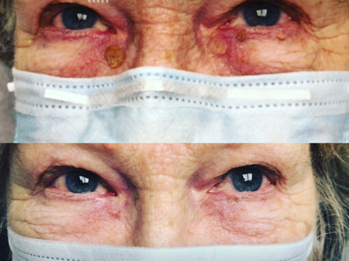 Laser treatment to remove lesion under the eye
