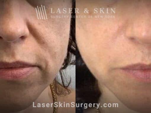 Laser treatment for nasolabial folds