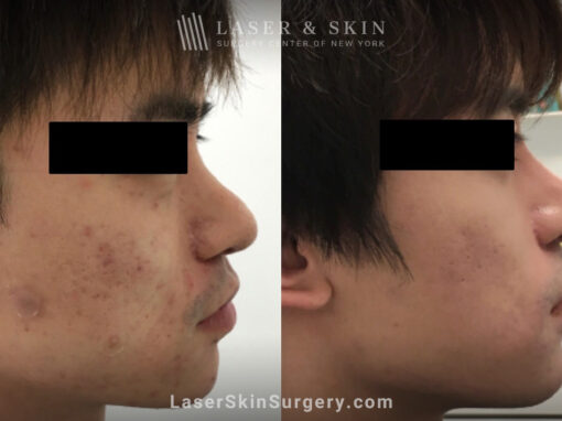 Laser treatment for active acne