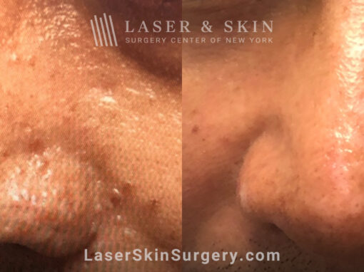 Laser treatment to smooth skin on nose