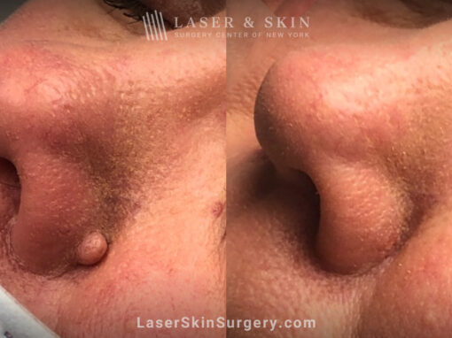 Mole removal to remove lesion from nose