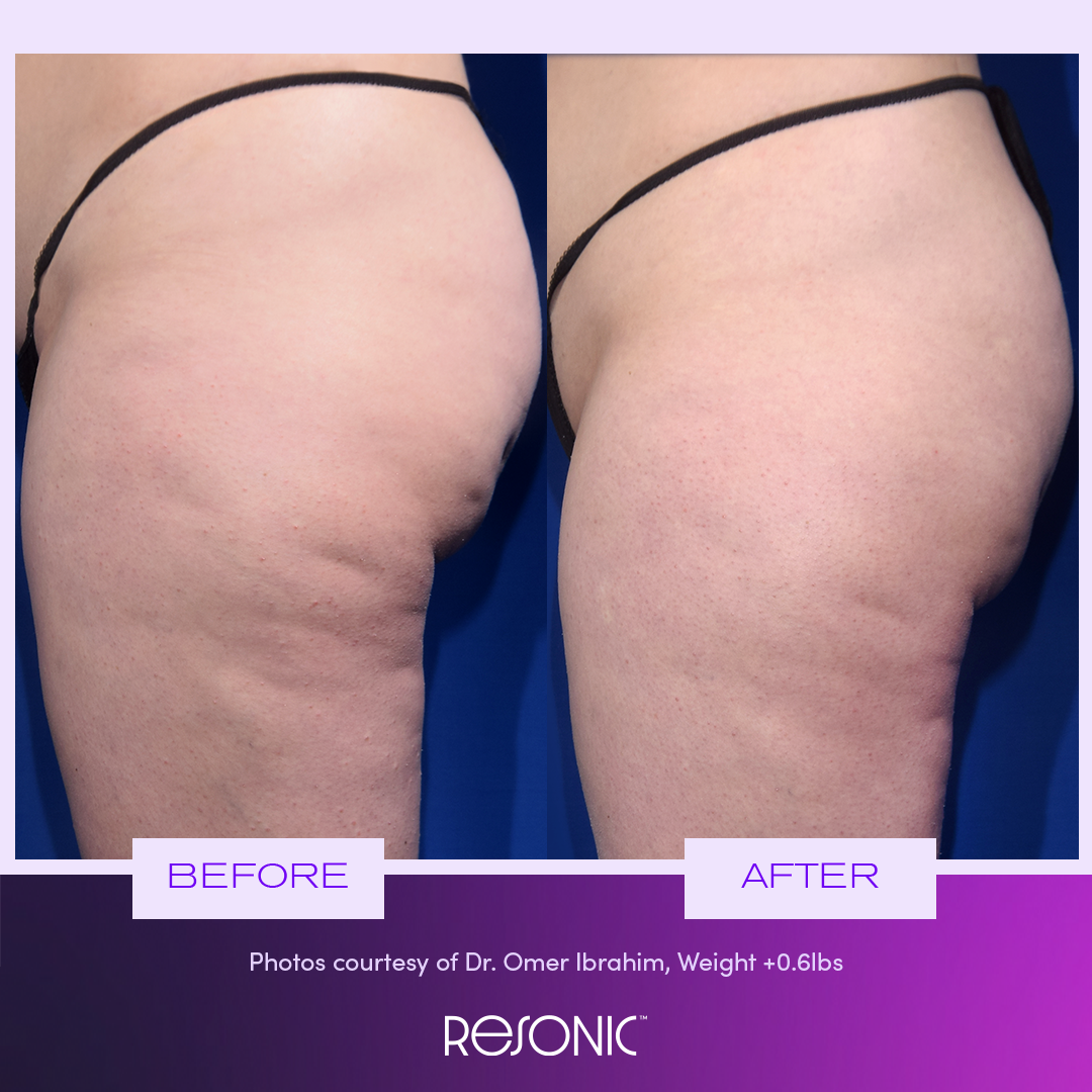 image of Resonic cellulite treatments results from dermatologists in NYC, NY