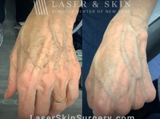 Ruby laser to treat lentigines and sun damage on hand