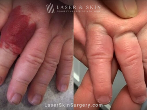 Vbeam laser used to remove hemangioma from infant's finger
