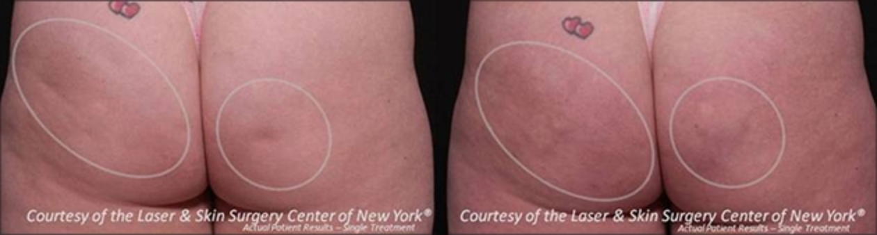before and after image of cellulite treatment results with Cellfina in NYC, NY