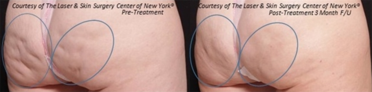 before and after image of cellulite treatment from skin care clinic in New York City