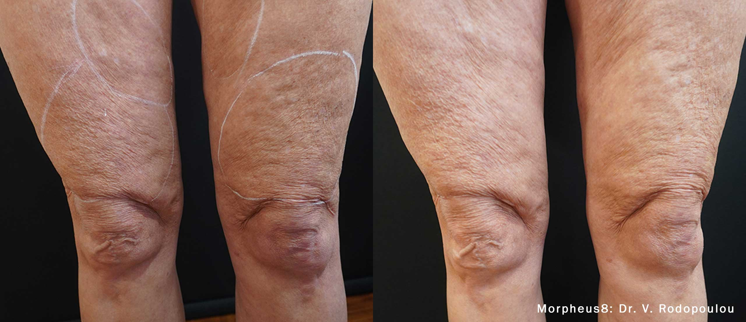 Morpheus8 treatment results on NYC patient