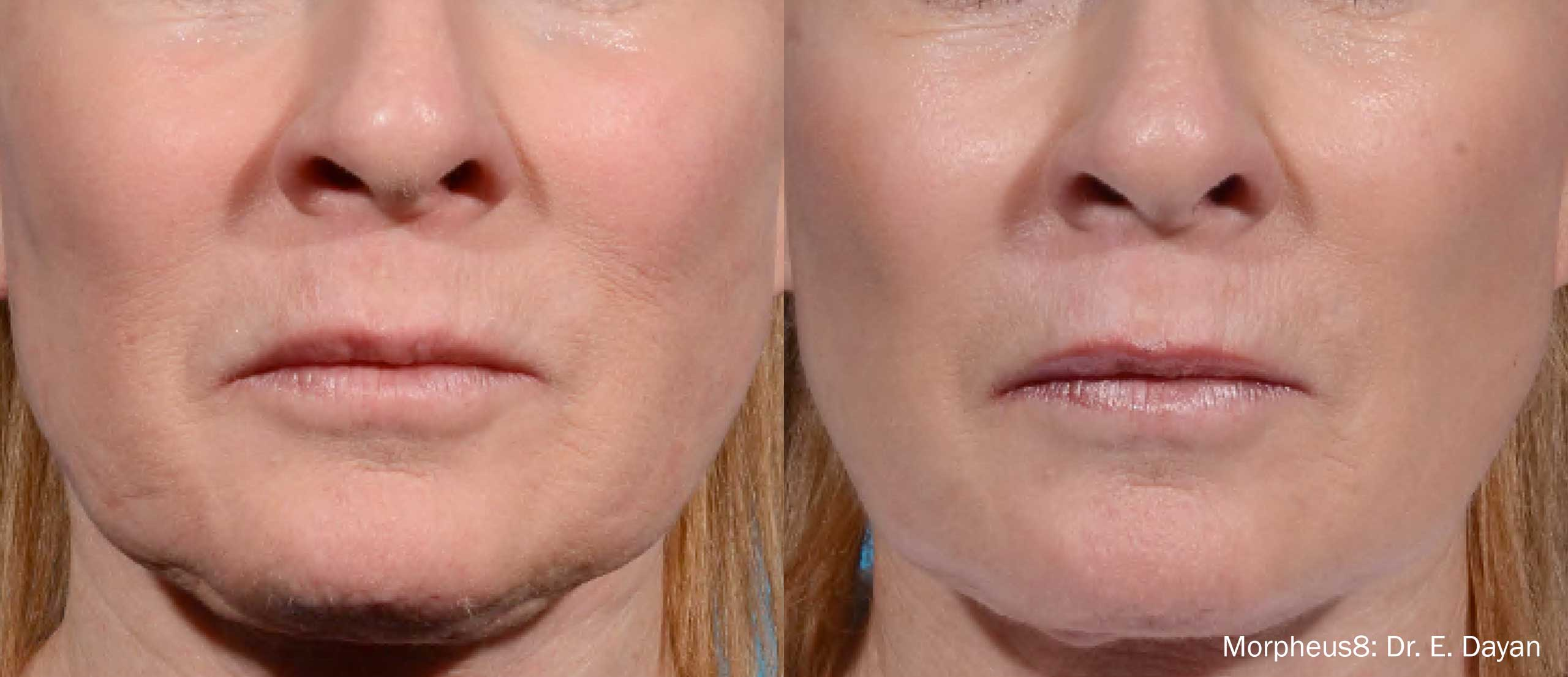 before and after results a patient's Morpheus8 treatment in NY, NY