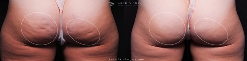 before and after photo of non-surgical cellulite treatment results in New York City