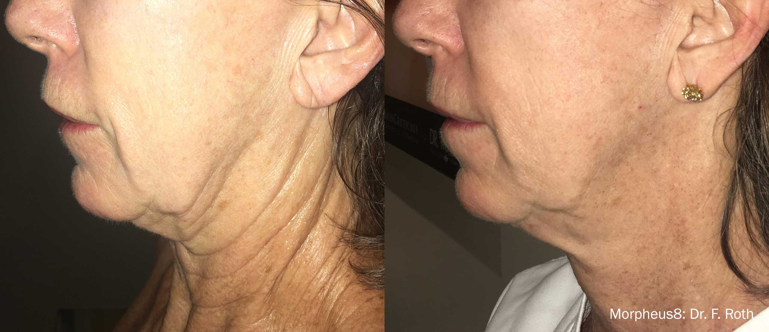 Morpheus8 microneedling RF results on a New York City patient