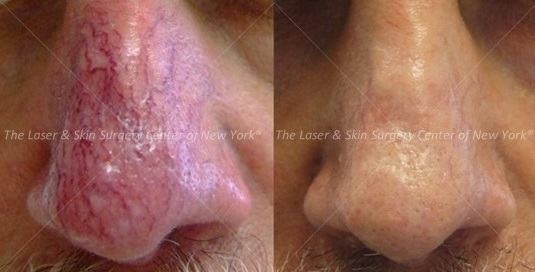 Two images comparing a man's nose before and after the treatment for broken vessels, the unwanted vessels are gone and the nose looks normal, NYC, NY.