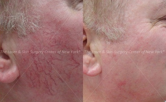 Before and After photos of face of a man after laser treatment for Poikiloderma, A type of sun damage on neck and chest.