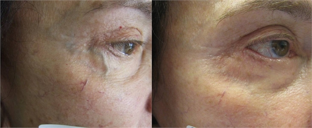 Images comparing eyelids of an older woman before and after treating Telangiectases in NYC, NY. Telangiectases are enlarged blood vessels that occur in all parts of the body, but most commonly on the face.
