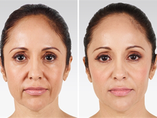 Images comparing face of a middle aged woman before and after her treatment for sagging skin in NYC, NY.