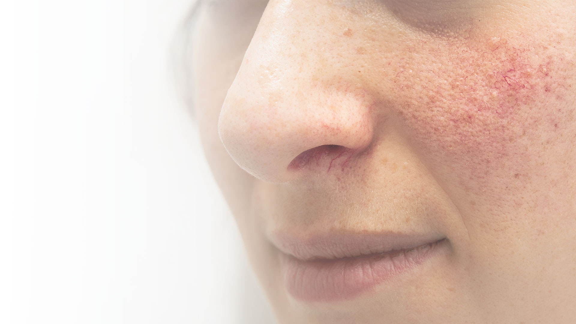 Close up on a woman's face with roscea, NYC, NY.