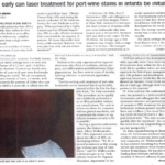 How early can laser treatment for port-wine stains in infants be initiated?