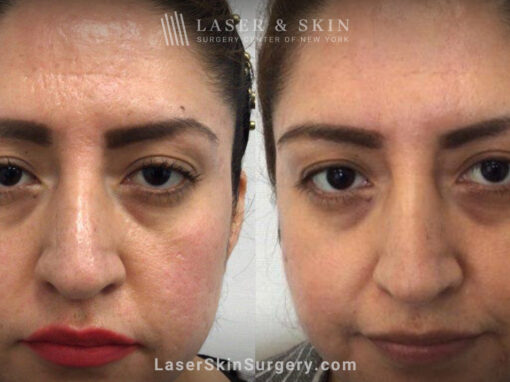 Genius microneedling to treat acne scarring – after three treatments