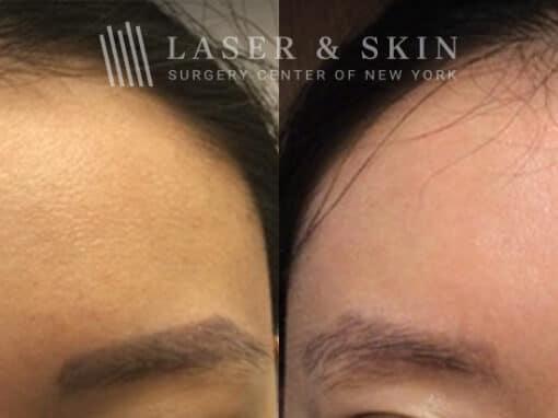 PicoSure laser to remove eyebrow tattoos