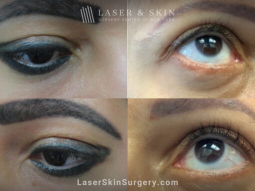 PicoSure laser to remove eyelid tattoo in two treatments