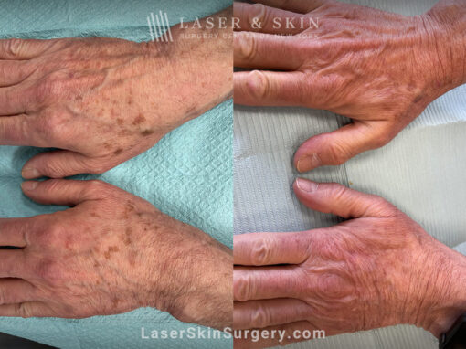 Ruby laser to remove lentigines (brown spots) from the backs of the hands