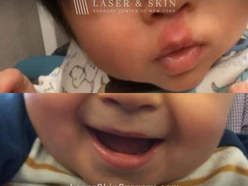 Vbeam laser to treat port wine birthmark above child's lip