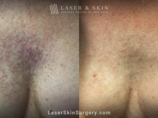 Vbeam laser to treat visible veins on chest after radiation treatment