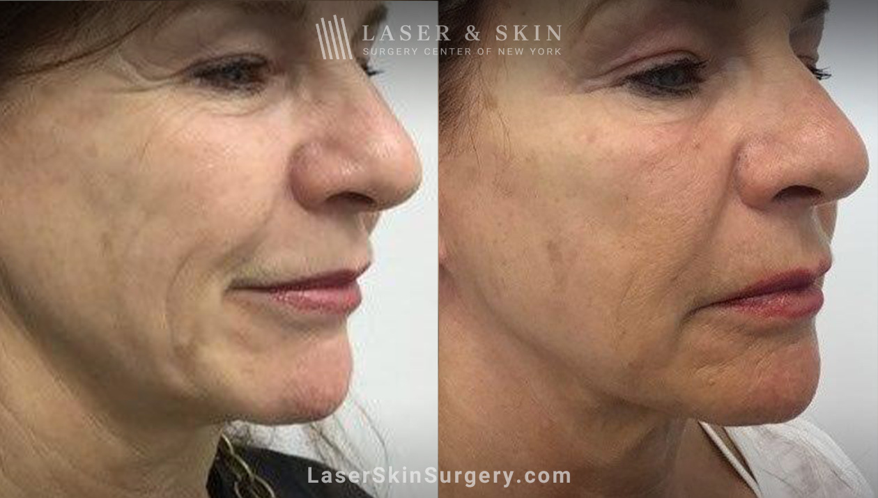 before and after results of Sofwave skin tightening treatment in NY, NY