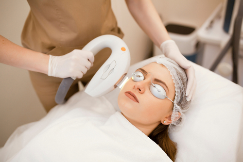 Model image of a young woman getting IPL laser treatment, NYC, NY.
