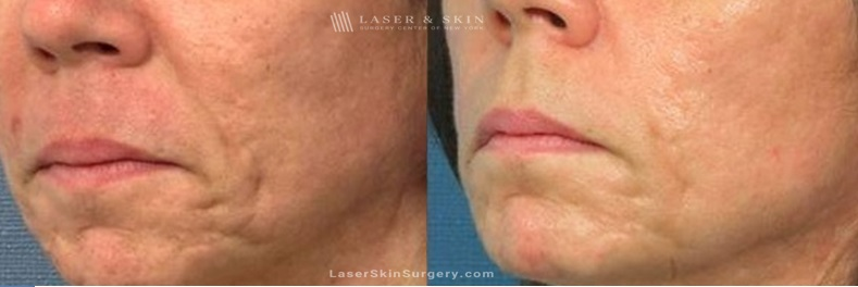 before and after image of a Fraxel Laser Treatment For Facial Acne Scarring