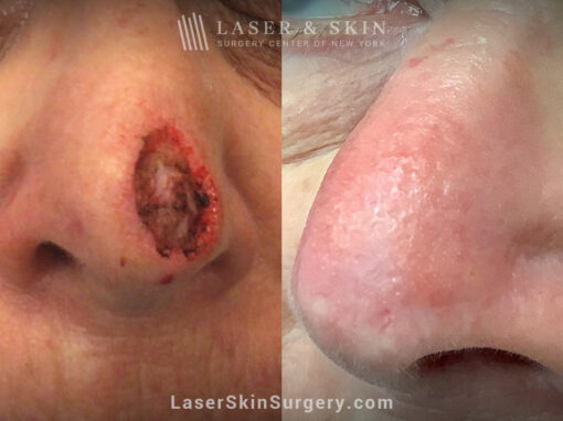 Mohs surgery to treat skin cancer on the nose with 1 Fraxel Repair laser treatment