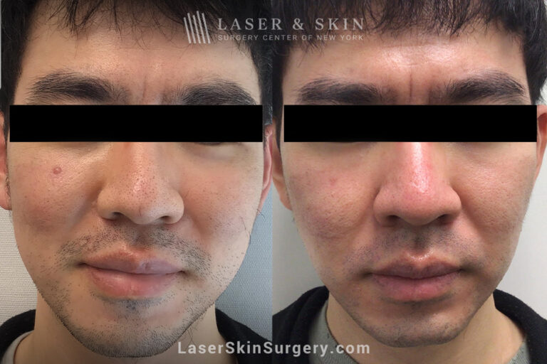 Fraxel laser to treat enlarged pores on the nose