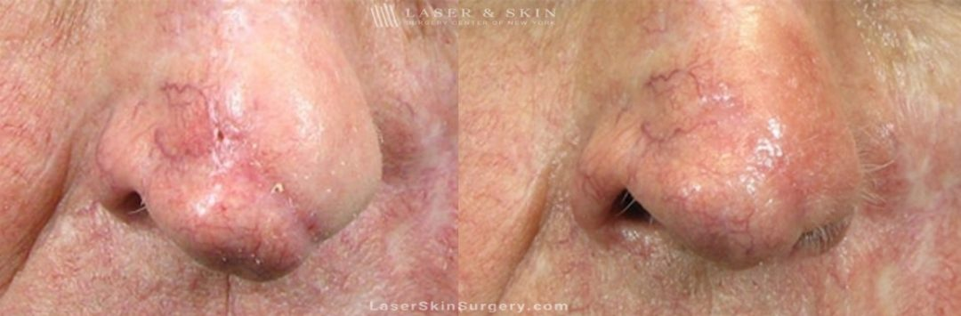 image of a before and after for laser treatment to remove a scar on a man's nose post mohs surgery