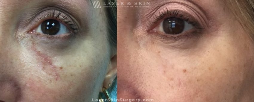before and after image of a laser treatment for scar removal on a woman's face under the eye